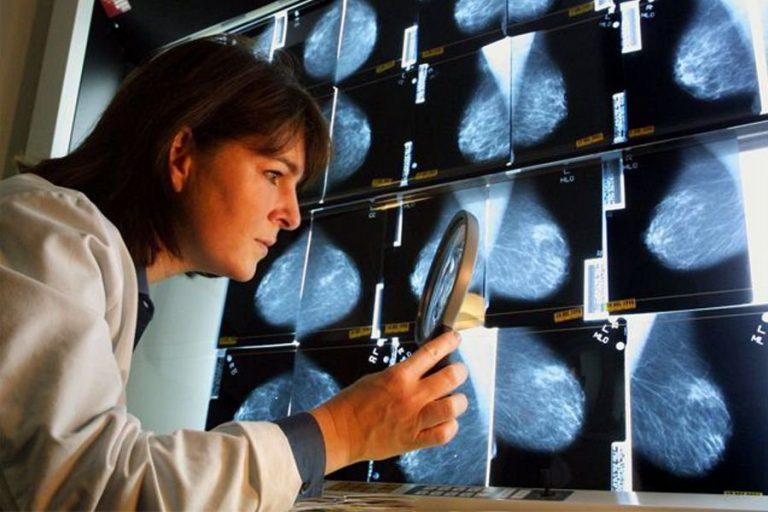 Тверские медики провели обучение ранней диагностике рака